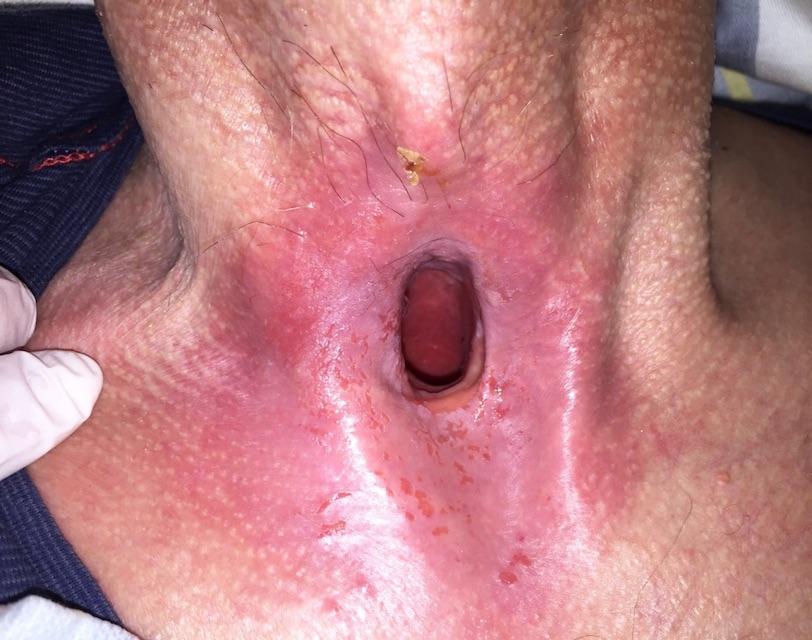 Hautpflege und Tracheostoma – Worauf es ankommt